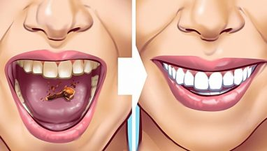28-EASY-TEETH-HACKS-THAT-WORK-MAGIC